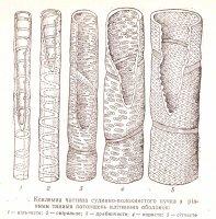 Характеристика потовщень клітинної оболонки у рослин.