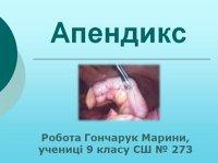 Презентація «Апендикс»